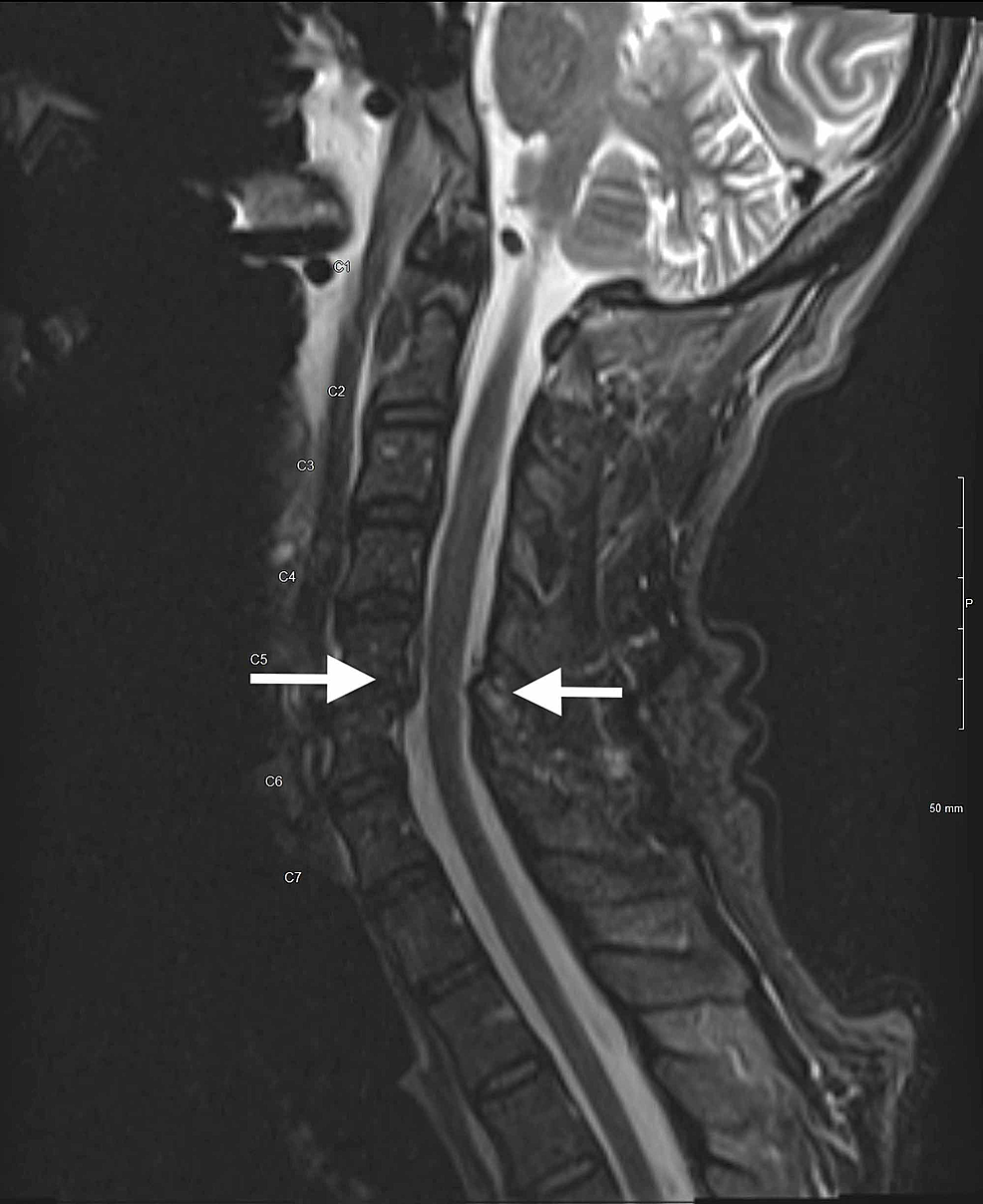 magnetic-resonance-imaging-of-the-cervical-spine-without-contrast-demonstrating-cervical-stenosis-at-C5-6-level-with-prevertebral-fluid-and-edema-(white-arrows)-consistent-with-Froin's-syndrome.