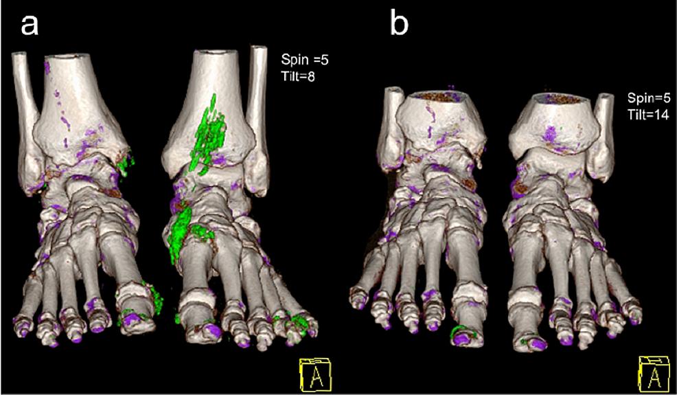 3D-DECT-reconstruction-images-