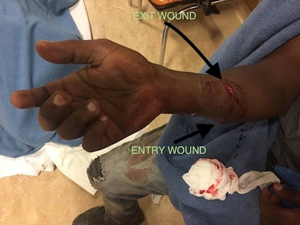 Gunshot-wound-on-the-right-forearm