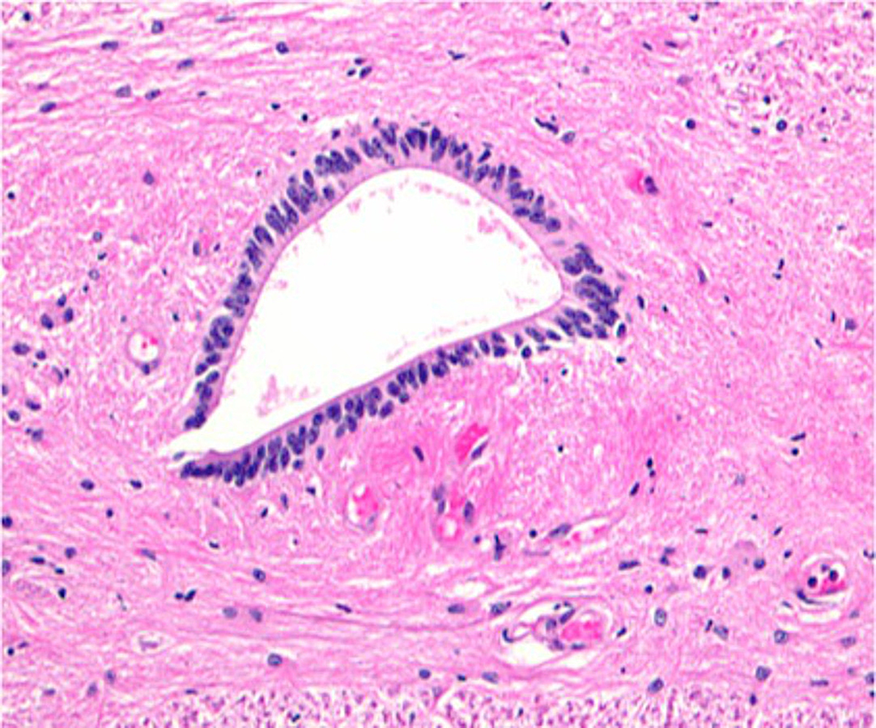 Histological-image-(H&E)-of-the-human-central-canal-at-the-center-of-the-image.