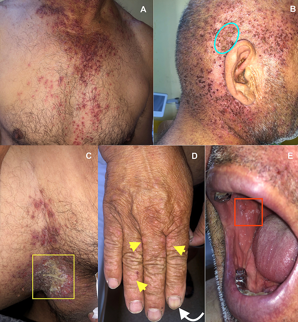 Clinical-aspects-of-the-lesions.