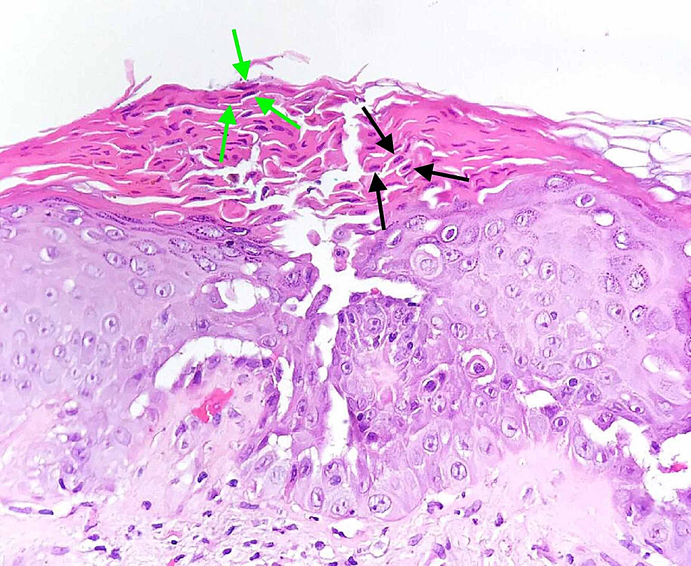 """Histopathological-aspect-of-a-cutaneous-fragment-with-focal-suprabasal-acantholysis-and-dyskeratosis-with-characteristic-""""corps-ronds""""---round,-large,-acantholytic-keratinocytes-predominantly-located-in-the-stratum-spinosum-and-stratum-granulosum-(black-arrows)-and-""""grains""""---elongated,-small,-acantholytic-cells,-mostly-located-in-the-stratum-corneum-(green-arrows)."""