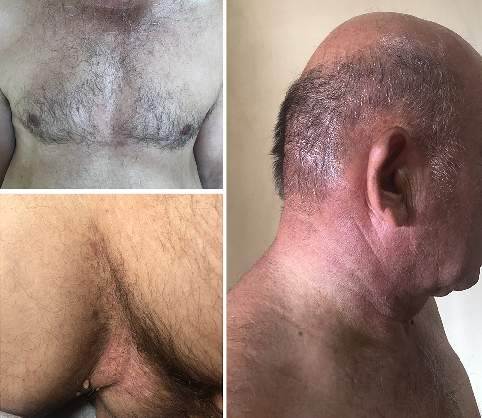 Outcome-after-two-months-of-treatment.-The-hyperkeratotic-papules-and-plaques-resolved-and-the-erosive-flexural-lesions-are-markedly-improved.