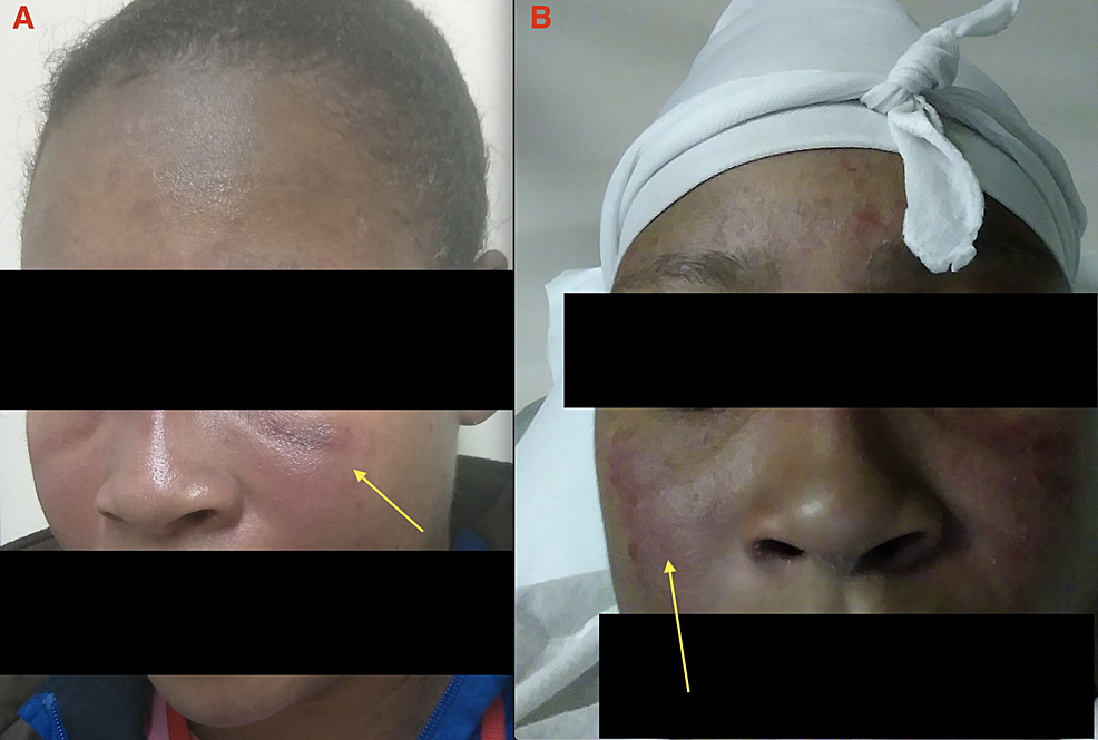 Hypopigmented-and-erythematous-lesions-on-the-face-and-cheeks-(yellow-arrows).-