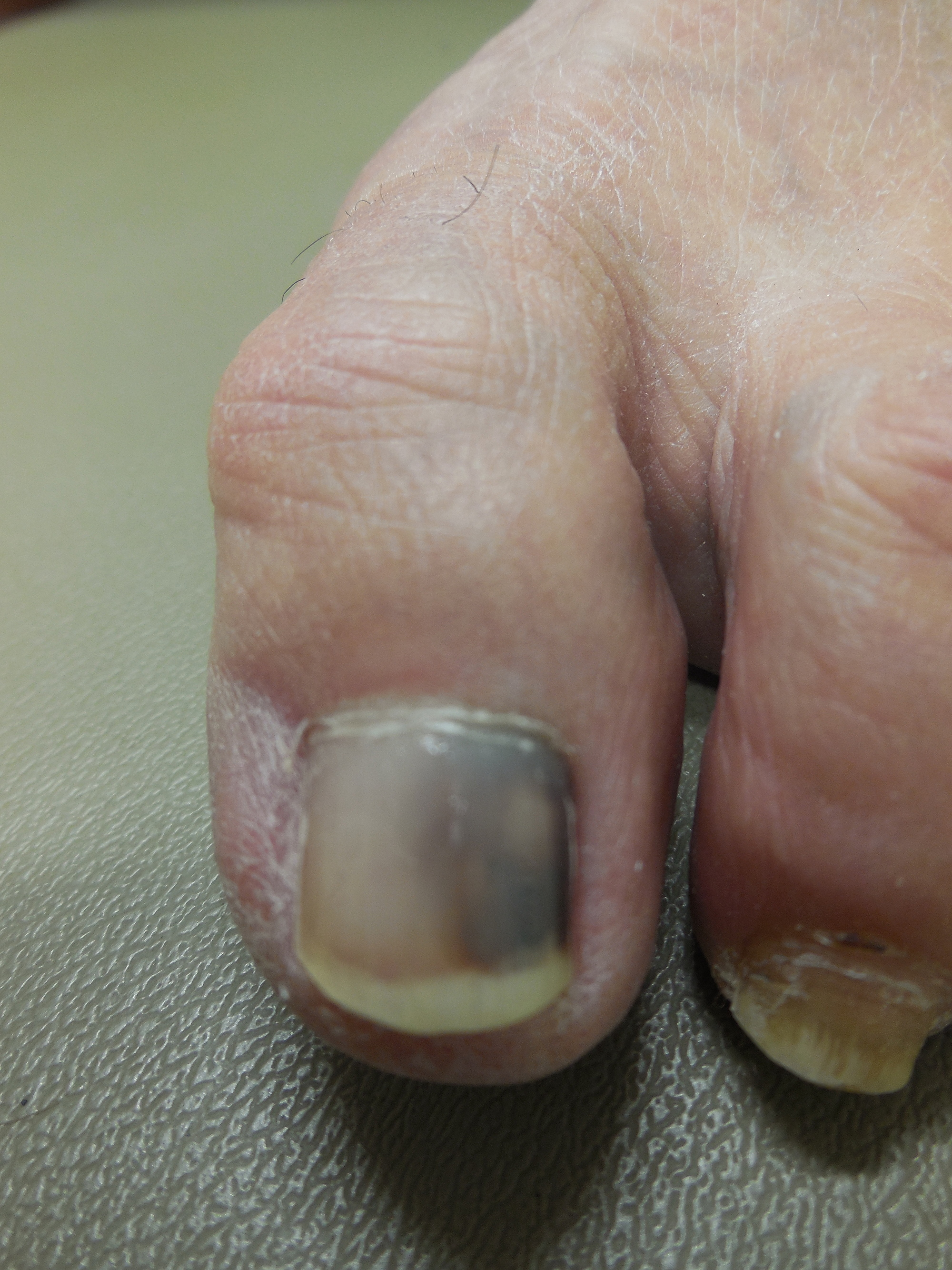 Cureus | Non-Melanoma-Associated Dyschromia of the Proximal Nail Fold