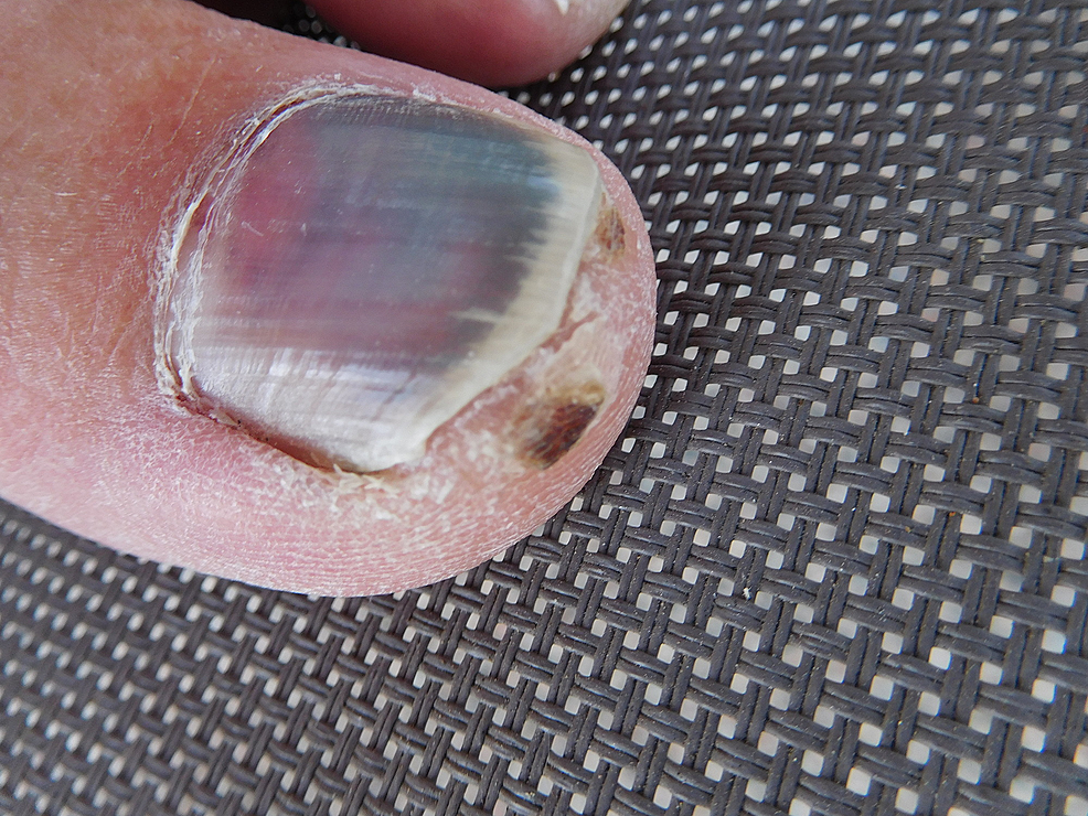 A-57-year-old-male's-left-great-toenail-with-red-purple-discoloration