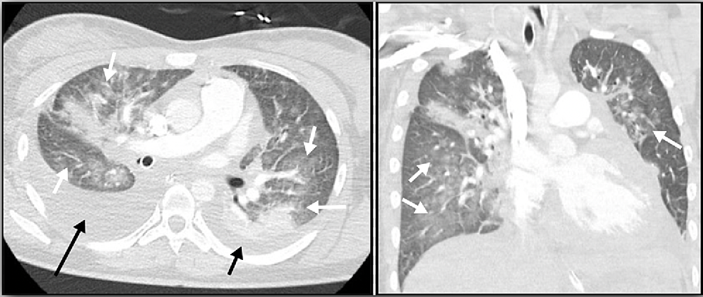 Chest-CT-scan-with-intravenous-contrast-demonstrates-evidence-of-pulmonary-edema-(white-arrows)-with-small-left-(short-black-arrow)-and-moderate-right-sided-pleural-effusion-(long-black-arrow).