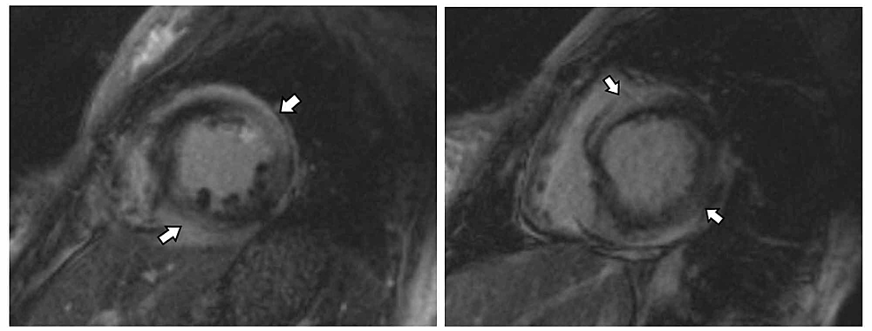 Cardiac-MRI-in-the-short-axis-views-demonstrate-abnormal-delayed-gadolinium-enhancement-(arrows)-involving-mid-myocardial-and-sub-epicardial-regions-of-multiple-segments-of-the-left-ventricle.