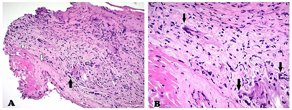Histopathology-findings-of-endomyocardial-biopsy-specimen-demonstrates-exuberant-inflammatory-infiltrate-consisting-predominantly-of-macrophages-and-mononuclear-cells-with-collections-of-multinucleated-giant-cells-(black-arrows).-Viable-myocytes-and-necrotic-tissue-are-both-present-(white-arrows).-The-destructive-nature-of-this-infiltrate-is-consistent-with-active-giant-cell-myocarditis.