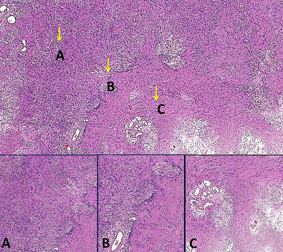 Pathological-images-of-the-tumor