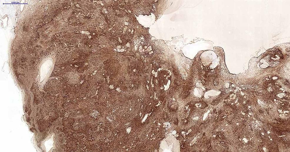 Immunohistochemical-staining-images-of-the-tumor