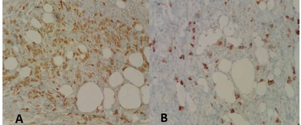 A.-Adipose-tissue-and-positive-IgG-plasmocytes.-B.-Plasmocytes-positive-for-IgG4-(H&E-40X)