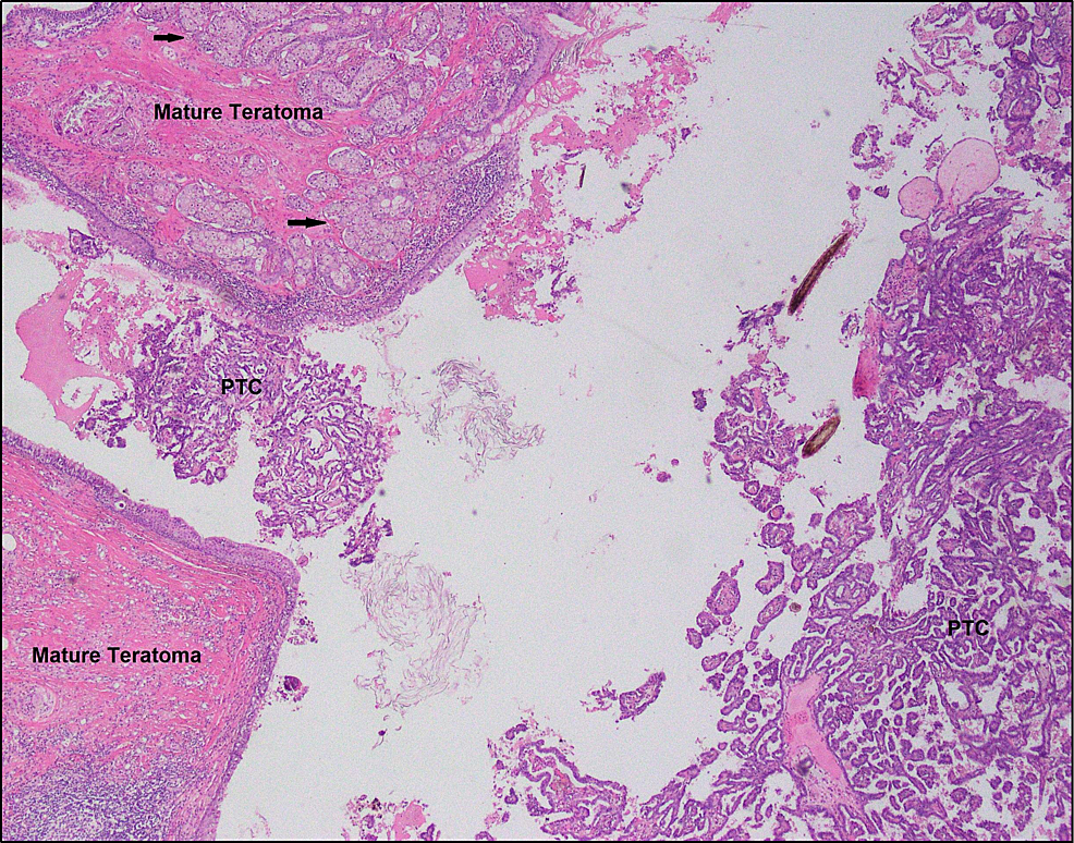 Low-resolution-image-showing-mature-teratoma-on-the-left-side-of-the-image-adjacent-to-the-focus-of-papillary-thyroid-carcinoma-arising-in-a-struma-ovarii