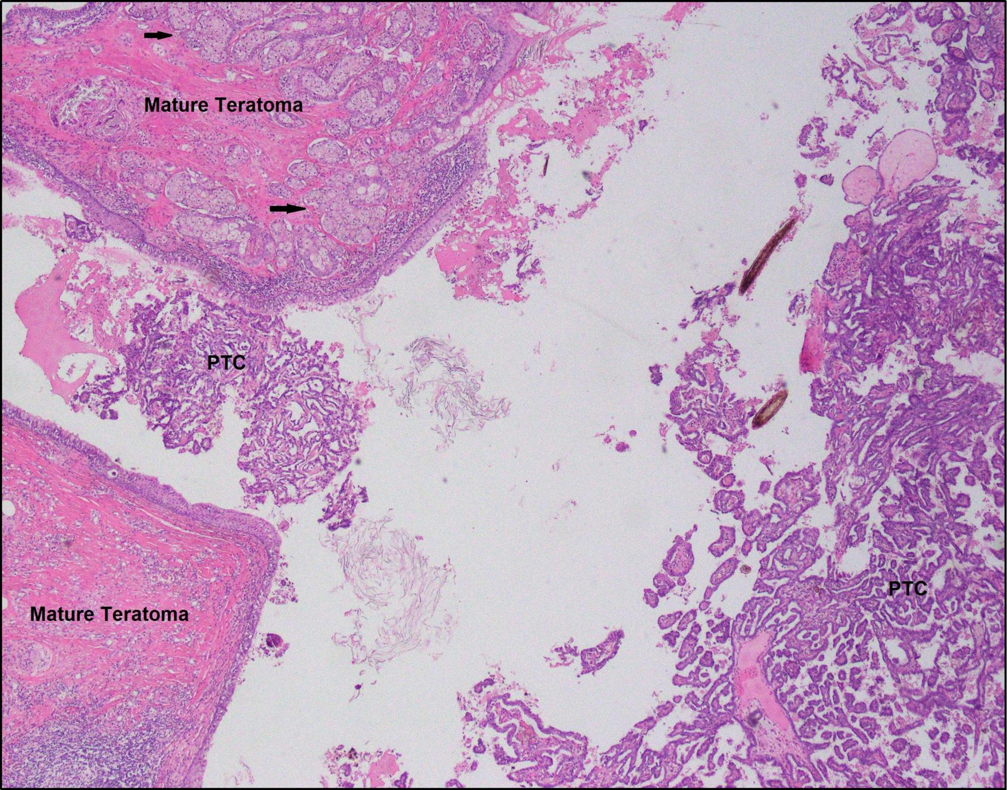 Cureus Malignant Thyroid Type Papillary Neoplasm In Struma Ovarii A Case Report