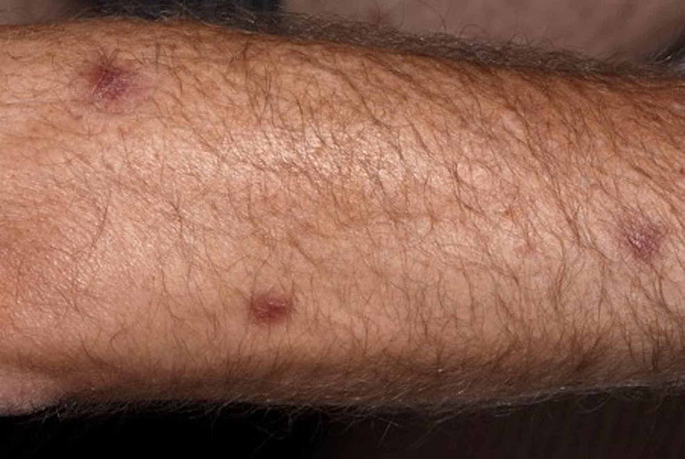 Solitary-papules-identified-on-the-forearm-of-our-patient