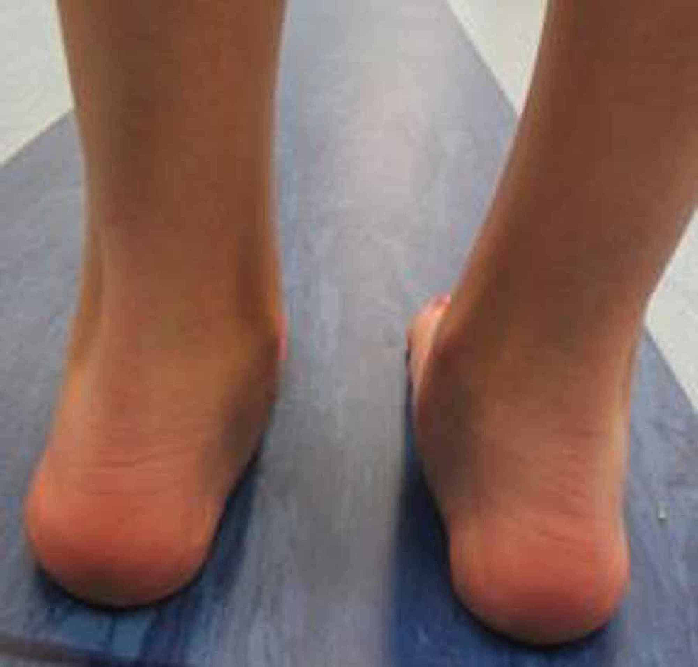 Post-operative-gait-analysis-photo-of-heel-valgus