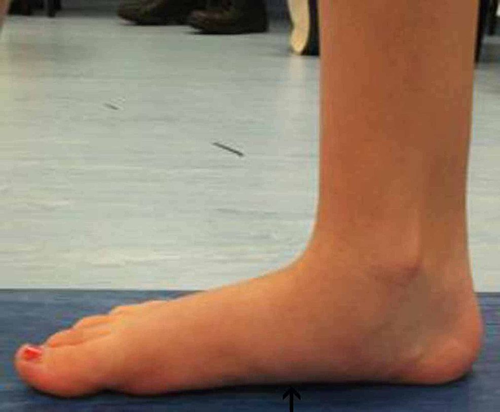 Right-foot-post-operative-gait-analysis-photo-of-the-medial-arch