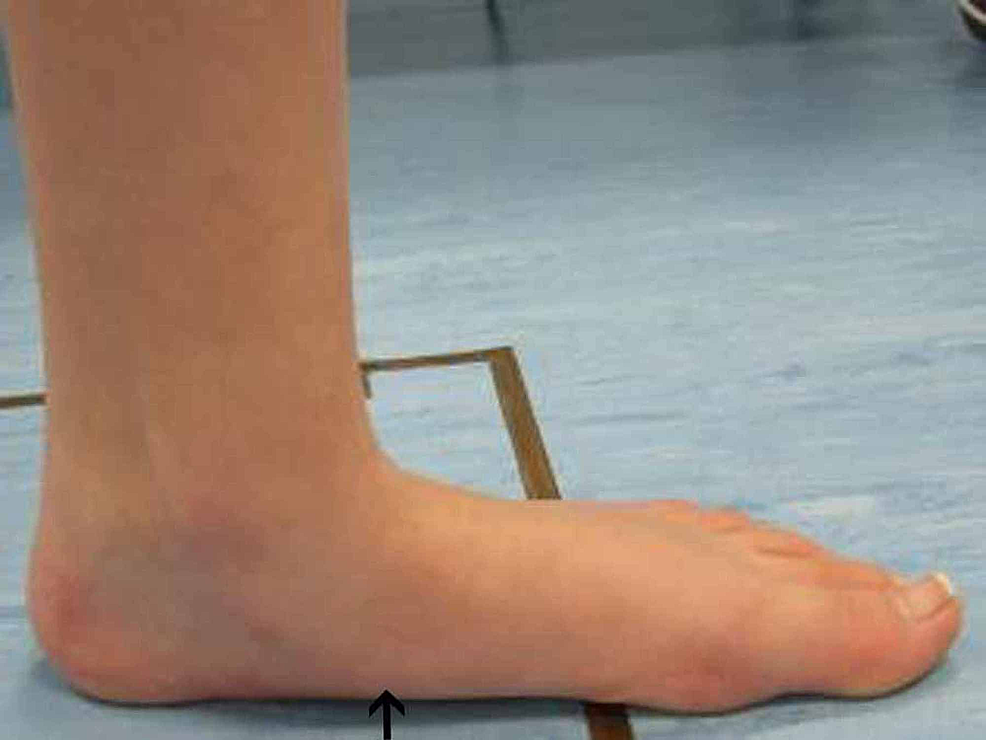 Left-foot-pre-operative-gait-analysis-photo-of-the-medial-arch