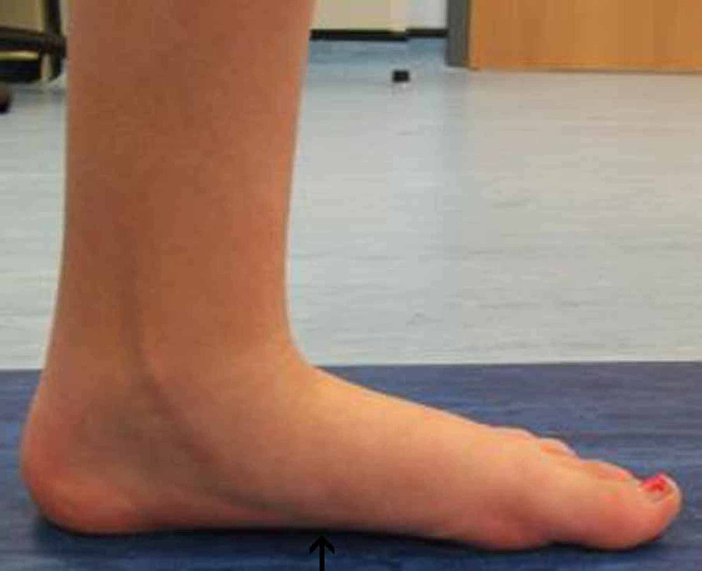 Left-foot-post-operative-gait-analysis-photo-of-the-medial-arch