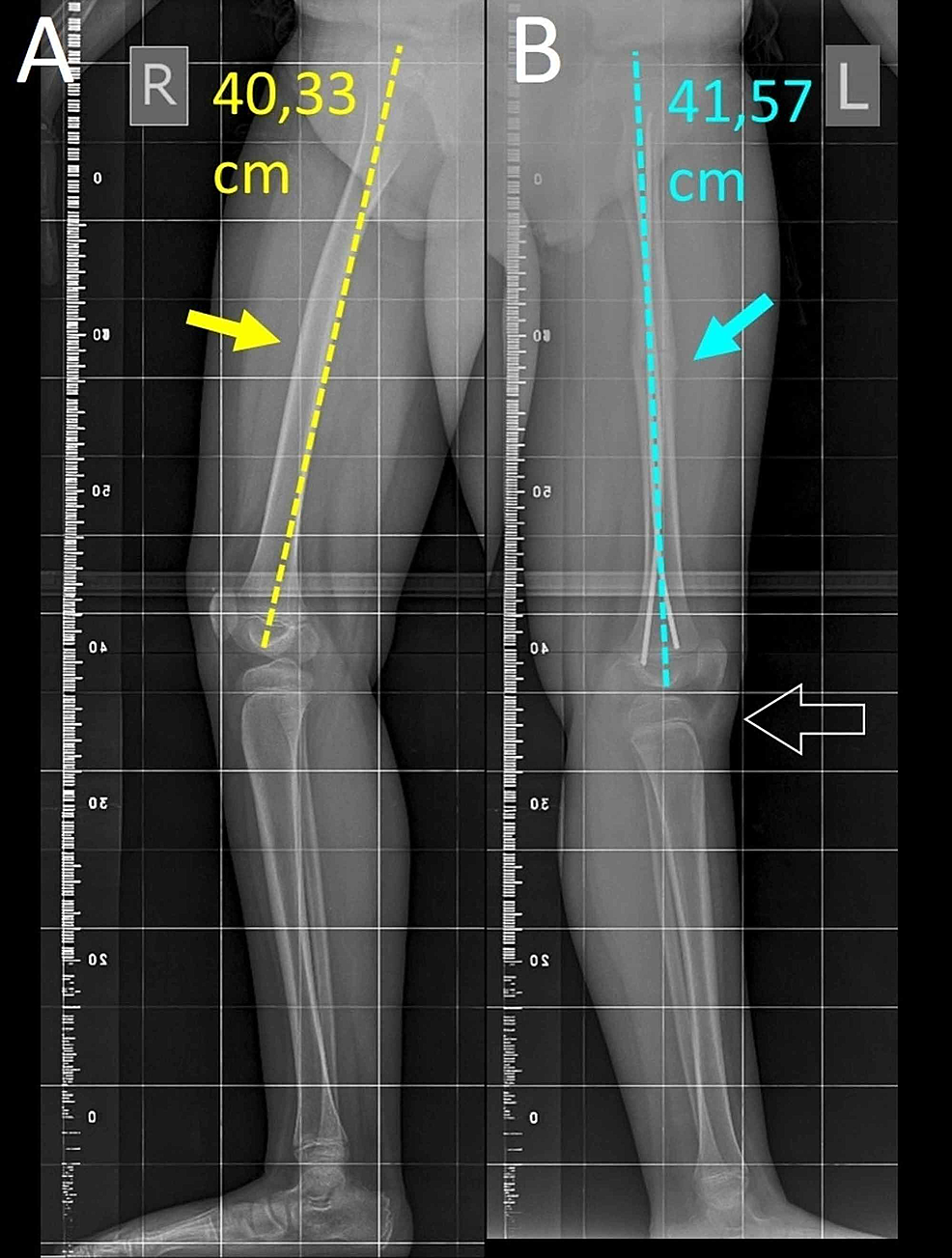 Long-standing-lateral-X-ray-view-of-the-right-(A)-and-the-left-(B)-femur-three-months-after-surgery