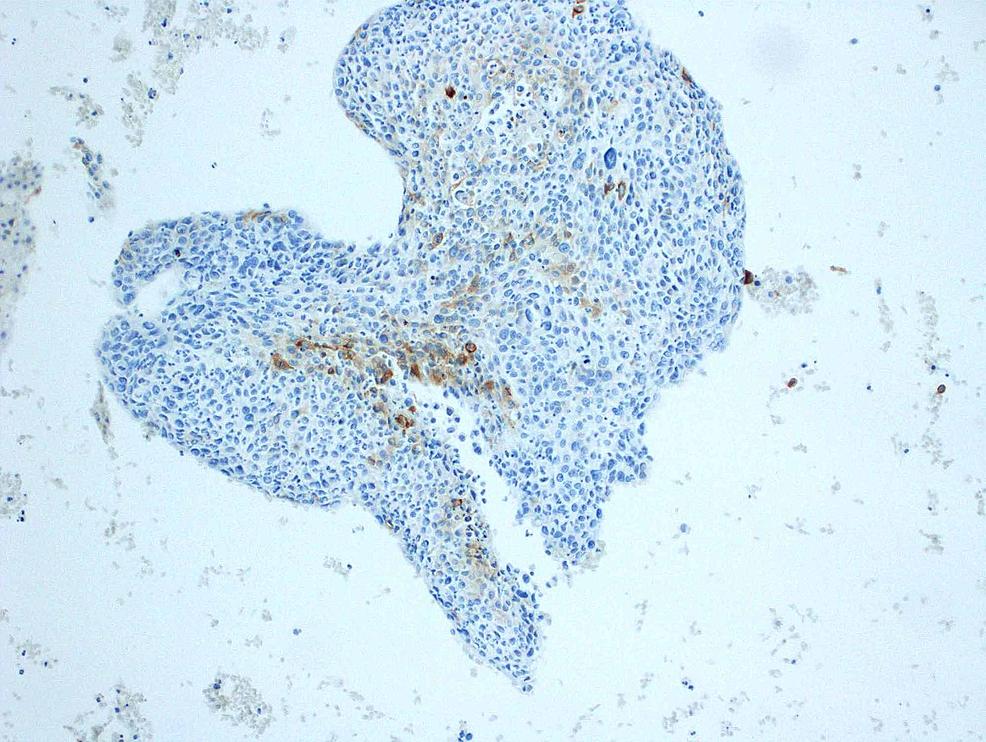 Focally-positive-Ber-EP4-immunohistochemistry-stain