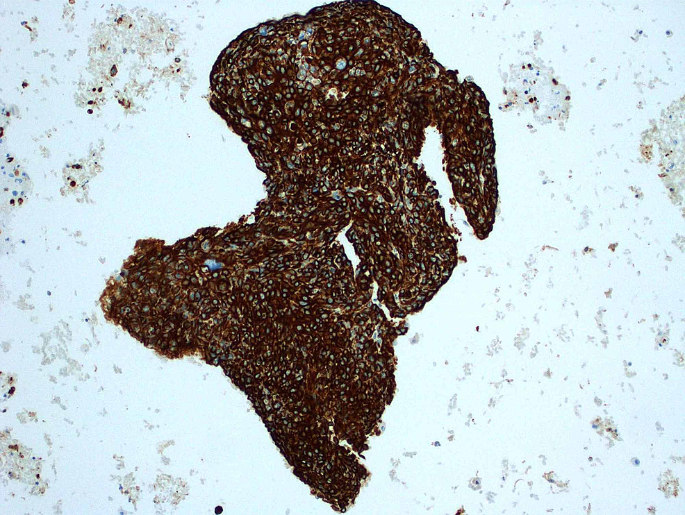Positive-stain-for-cytokeratin-5/6-expression