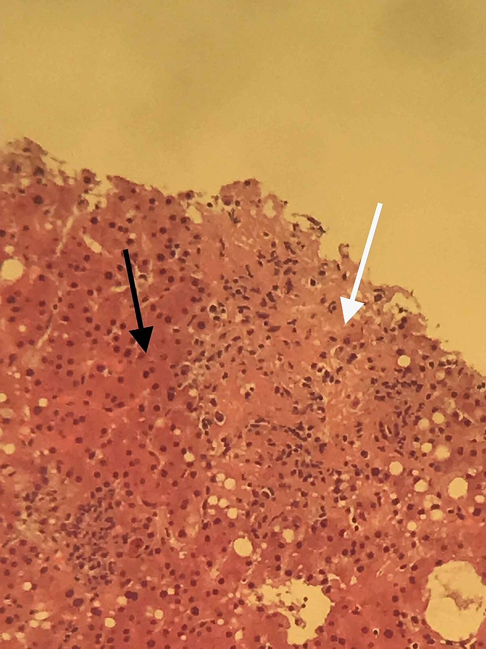 Pathology-image-of-the-patient