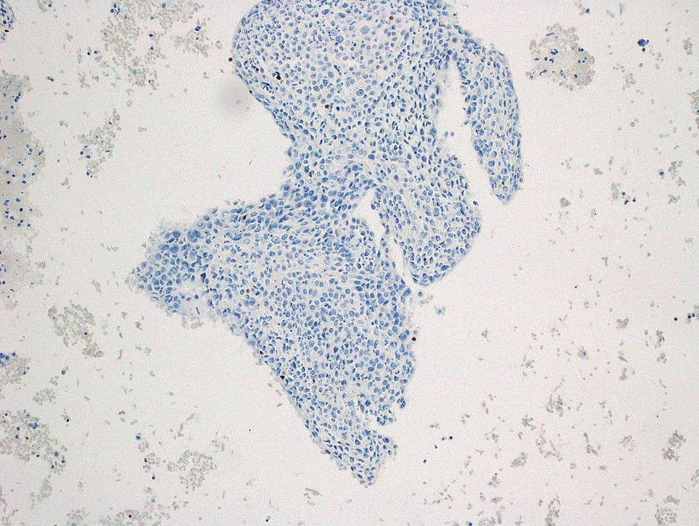 Negative-nuclear-staining-for-GATA3-