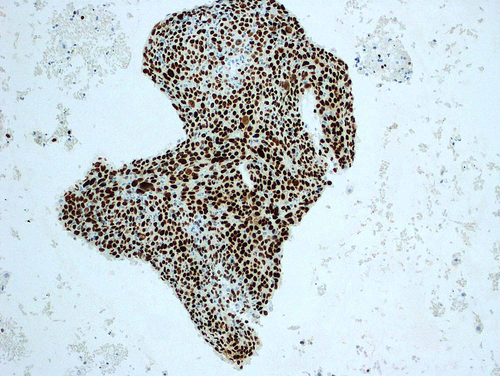 Positive-nuclear-staining-for-p63