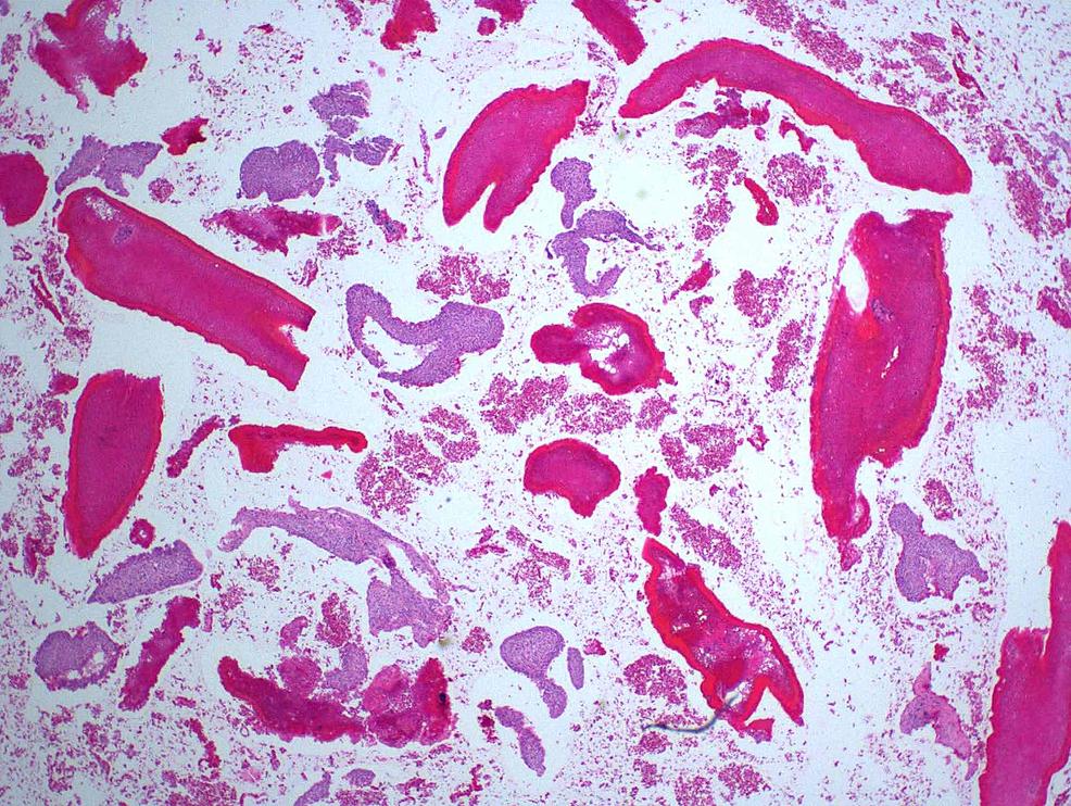 Hematoxylin-and-eosin-stain
