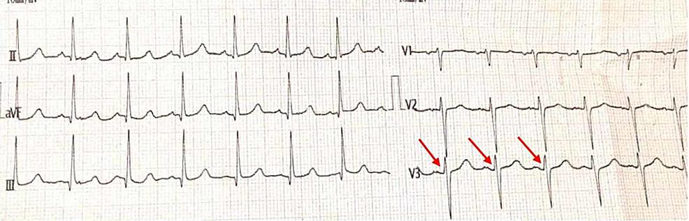 ECG---Poor-R-wave-Progression