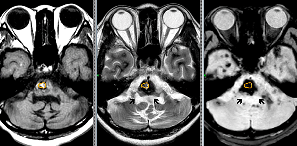Multiple-cavernous-malformations-in-the-brainstem