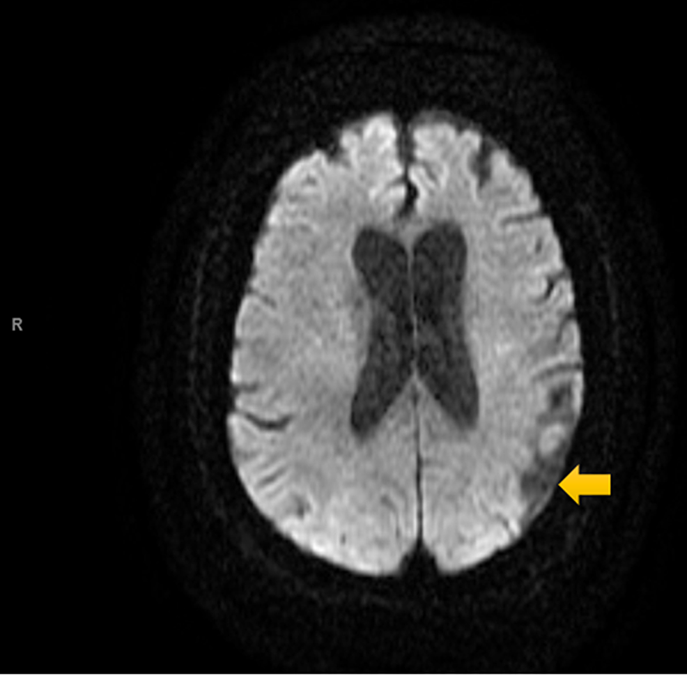 Diffusion-weighted-MRI-Scan-of-the-Head