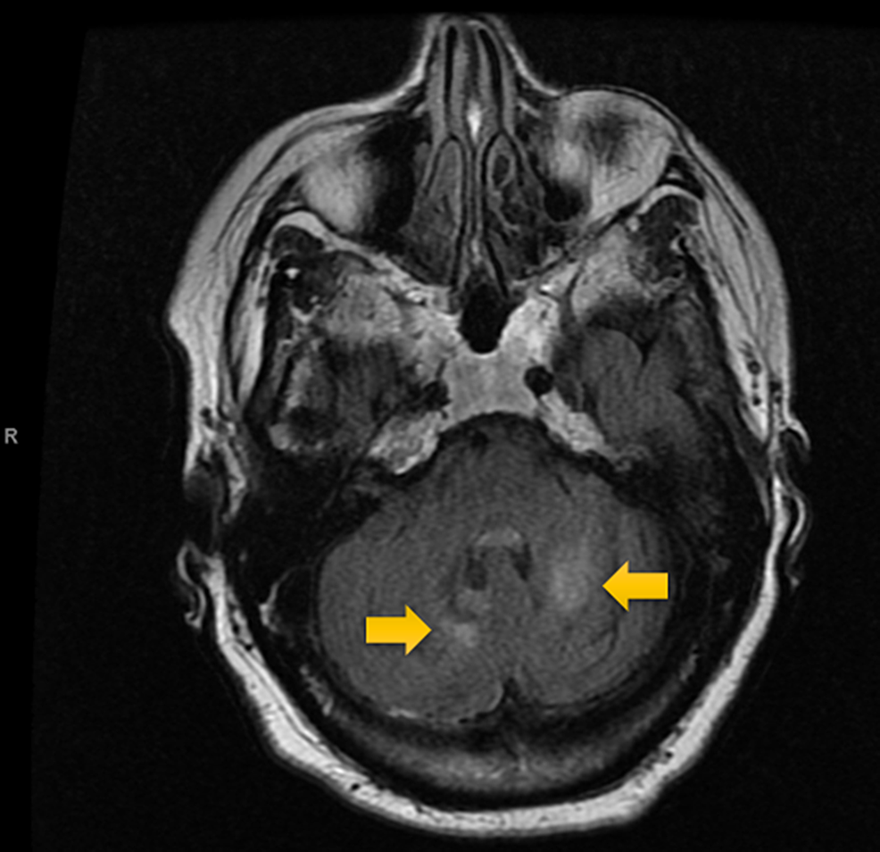 T2-flair-MRI-Scan-of-the-Head