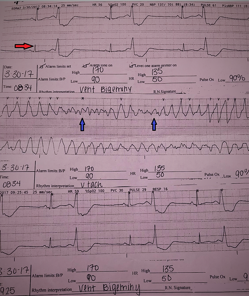 Electrocardiogram-of-the-pateint-in-the-ED-showing--polymorphic-ventricular-tachycardia-(blue-arrows)-and-ventricular-bigeminy-(red-arrow).