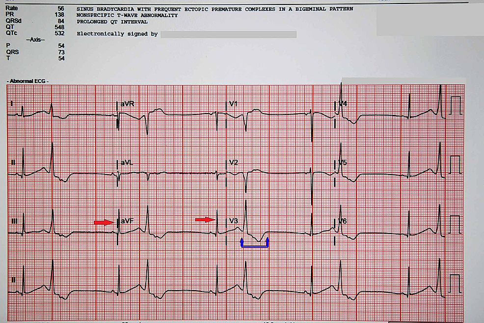 Electrocardiogram-of-the-pateint-in-the-ED-continuing-to-show-frequent-premature-ventricular-contractions-(red-arrows)-ventricular-tachycardia-and-prolnged-QT-interval-(blue-arrows).