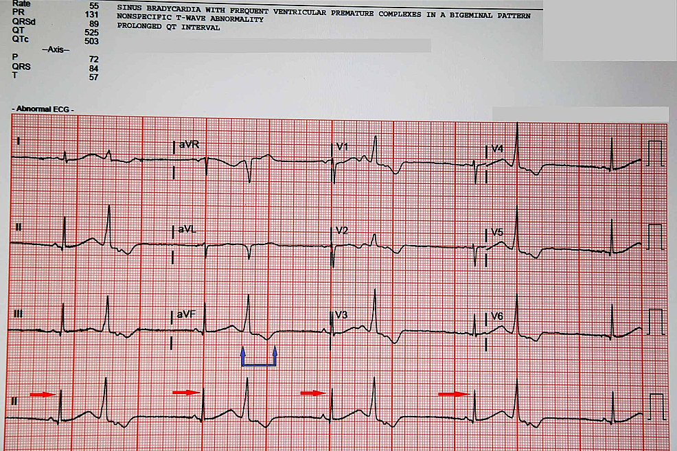 Electrocardiogram-of-the-patient-the-next-day-when-she-again-presented-to-the-ED,-still-continuing-to-show-the-frequent-premature-ventricular-complexes--(red-arrows)--and-bigeminal-pattern-along-with-the-prolonged-QT-interval-(blue-arrows)-which-had-only-marginally-improved.--