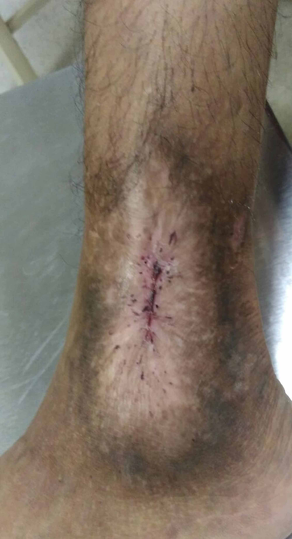 Healed-leg-ulcer