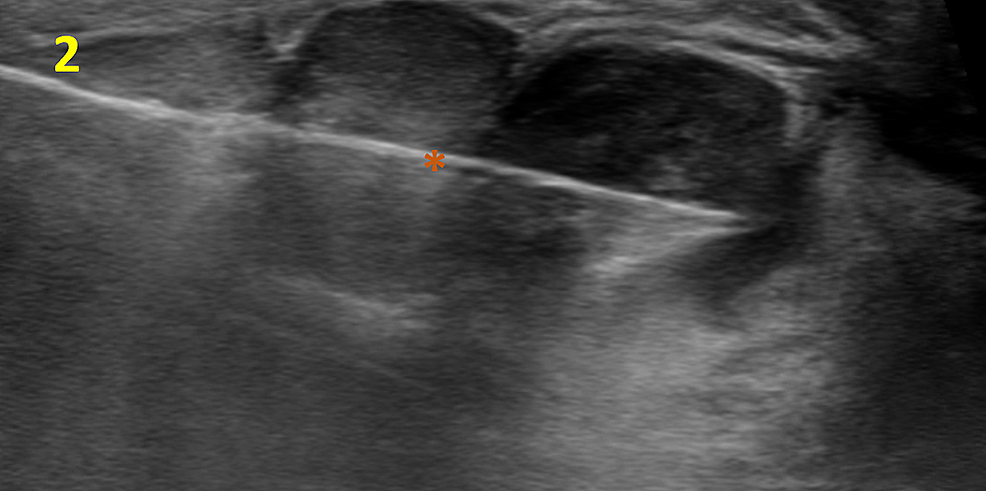 Ultrasound-guided-Core-Needle-Biopsy-of-the-Right-Breast