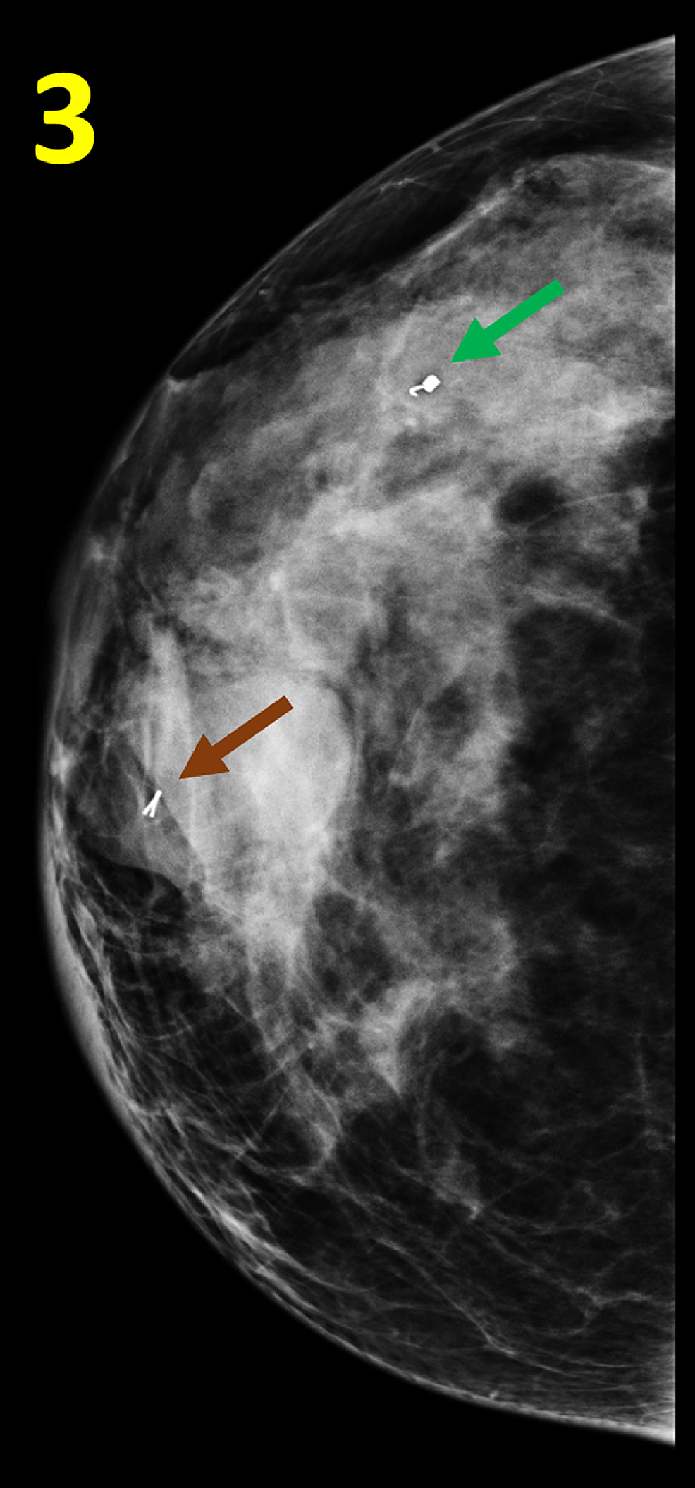 Post-biopsy-Mammogram-of-the-Right-Breast-in-Cranial-caudal-View