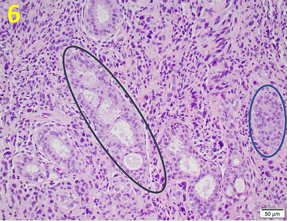 Malignant-Stromal-Cell-Proliferation