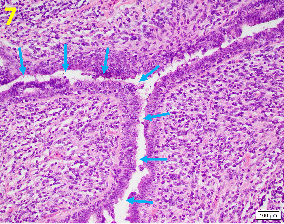 Leaf-like-Projection-of-Phyllodes-Tumors