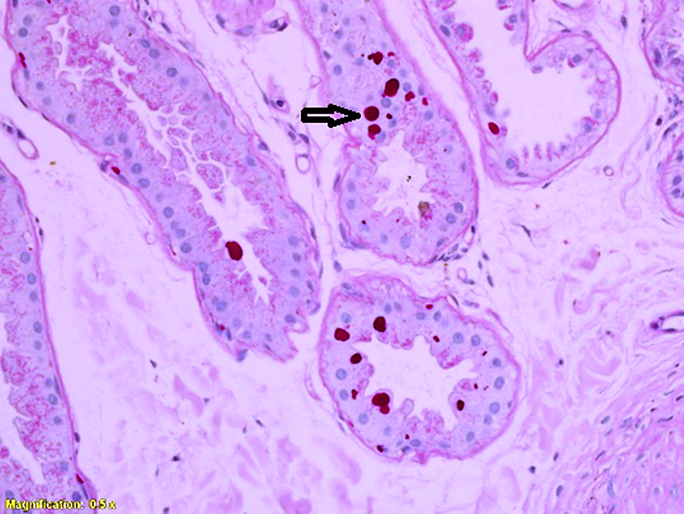 PAS-stained-slide-showing-Lafora-bodies-in-the-glandular-epithelium.