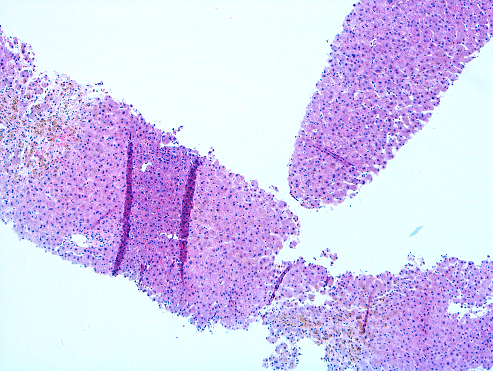 Liver-histology-showed-mild-centrilobular-fibrosis-with-significant-intracellular-pigment-in-thecentrilobularhepatocytes