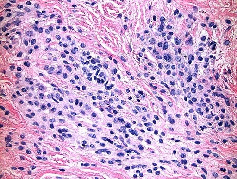 There-is-background-intradermal-melanocytic-nevus-with-congenital-features.-Small,-round,-type-B-melanocytes-present-in-nests-in-the-reticular-dermis.-Type-C-melanocytes-present-deeper-in-the-reticular-dermis-forming-into-regular-nests.-No-atypia-identified.-No-features-of-a-deposition-disorder-identified.