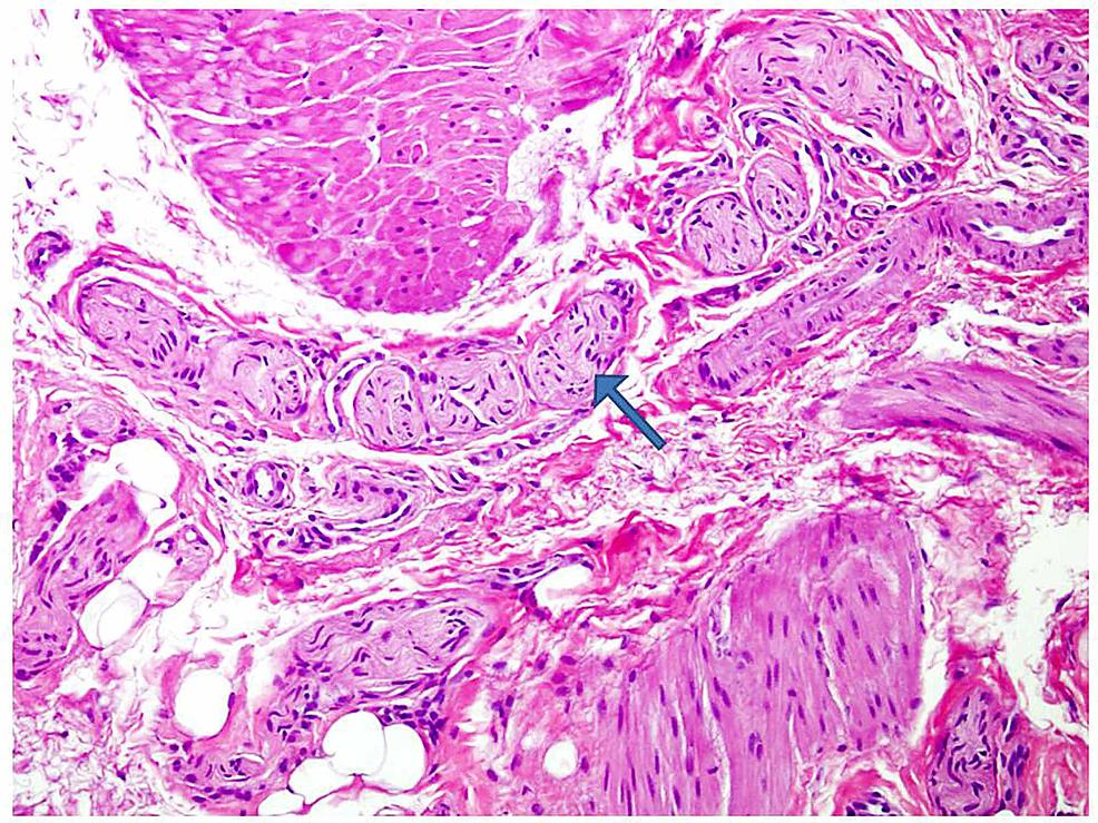 Numerous-hypertrophic-nerve-bundles-(arrow)-were-seen-within-muscularis-propria-fibers-(H&E-200x-magnification)