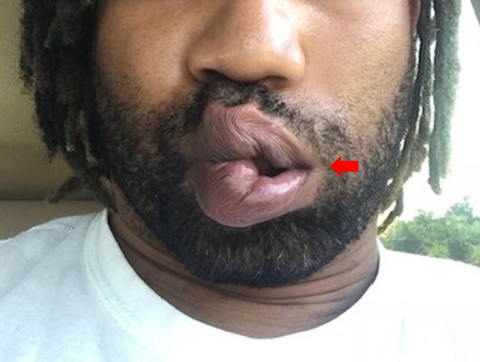 Left-facial-palsy