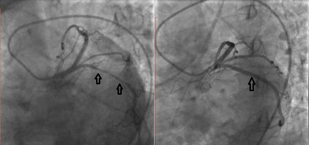 Left-coronary-angiography.