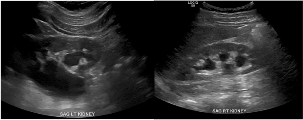 Renal-ultrasound-showing-bilateral-hydronephrosis