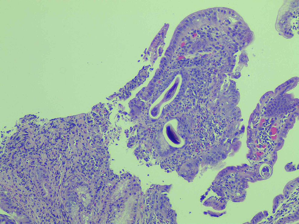 Histology-shows-acute-and-chronic-inflammation-of-the-duodenal-mucosa-with-a-cross-section-of-parasitic-worms,-consistent-with-Strongyloides-stercoralis-
